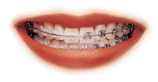 Fotos de Ortodoncia y odontologia  sabana grande 2